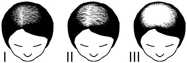 Naisten hiustenlähtö: Ludwigin asteikko