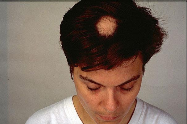 Alopecia areata eli pälvikalju naisella. Kuva Wikimedia Commons