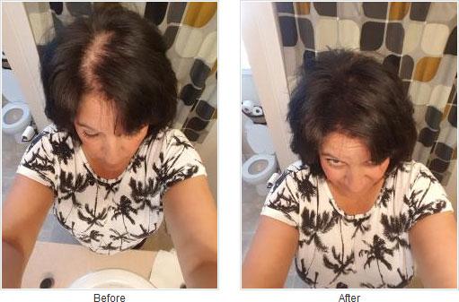 Caboki ennen ja jälkeen kuva 1