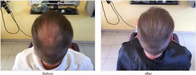 Caboki ennen ja jälkeen kuva 2