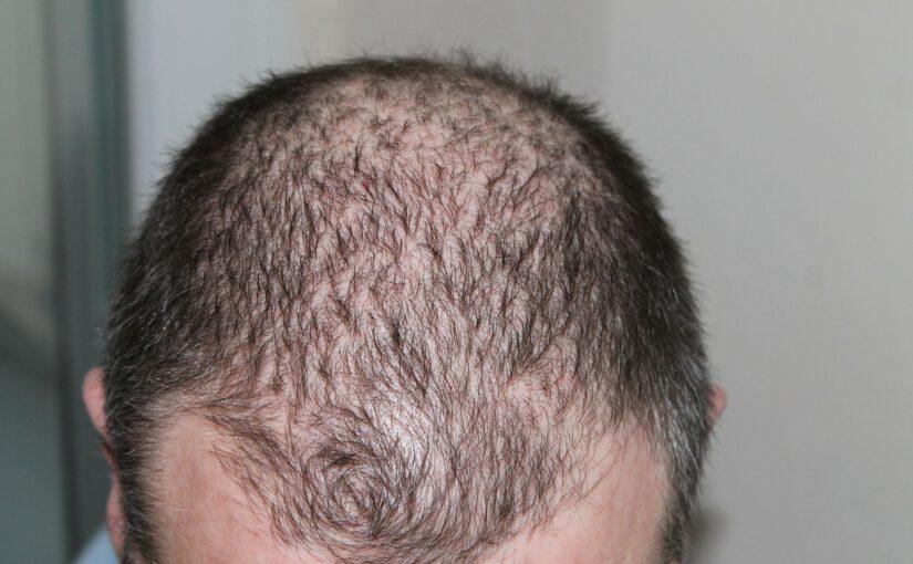 Geneerinen hiustenlähtö