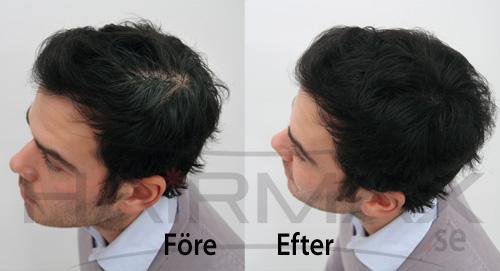 HairMax tuuhenteet ennen ja jälkeen kuva 1