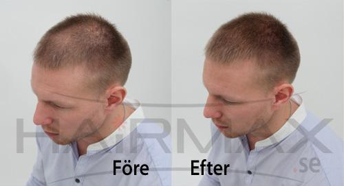 HairMax tuuhenteet ennen ja jälkeen kuva 2