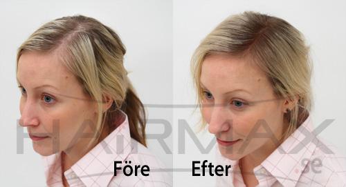 HairMax tuuhenteet ennen ja jälkeen kuva 3