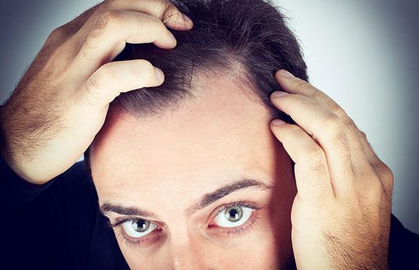 Hiustenlähtö ja kaljuuntuminen