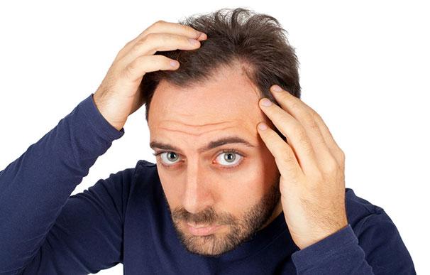 Hiustenlähdöstä kärsivä mies
