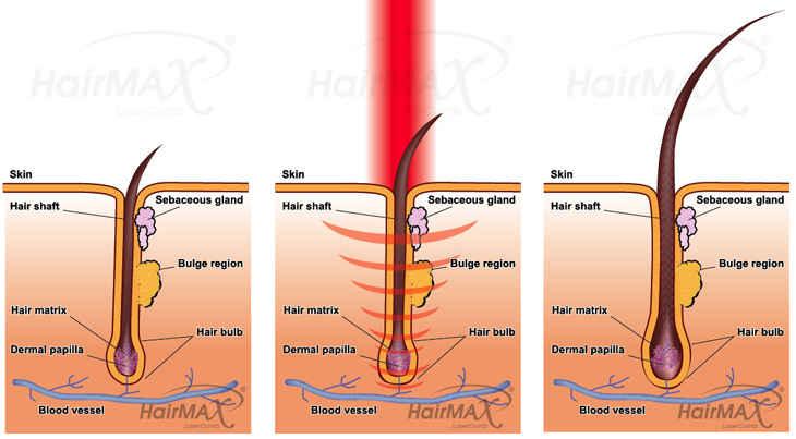 Laserkampa kaavio