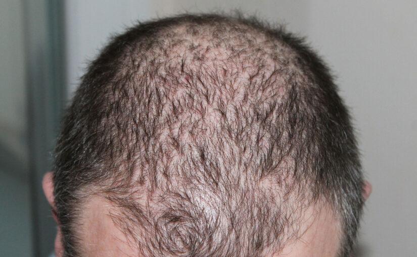 Hiustenlähdön hoito 2020 – Mitä uutta on tulossa?