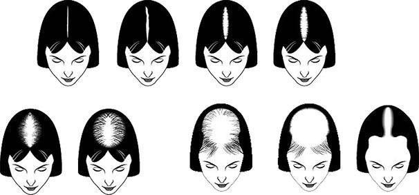 Naistyyppisen hiustenlähdön asteet ja eteneminen