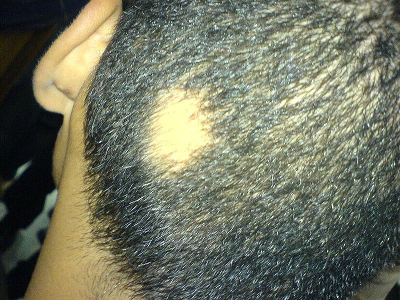 Pälvikaljussa hiuksia lähtee läiskittäin, tavallisimmin takaraivolta