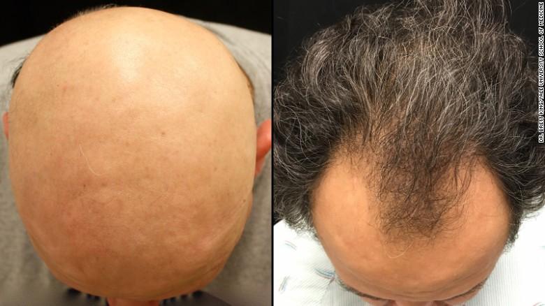 Lääke peruutti yhden hiustenlähdön tyypin; onko miestyyppinen seuraava?